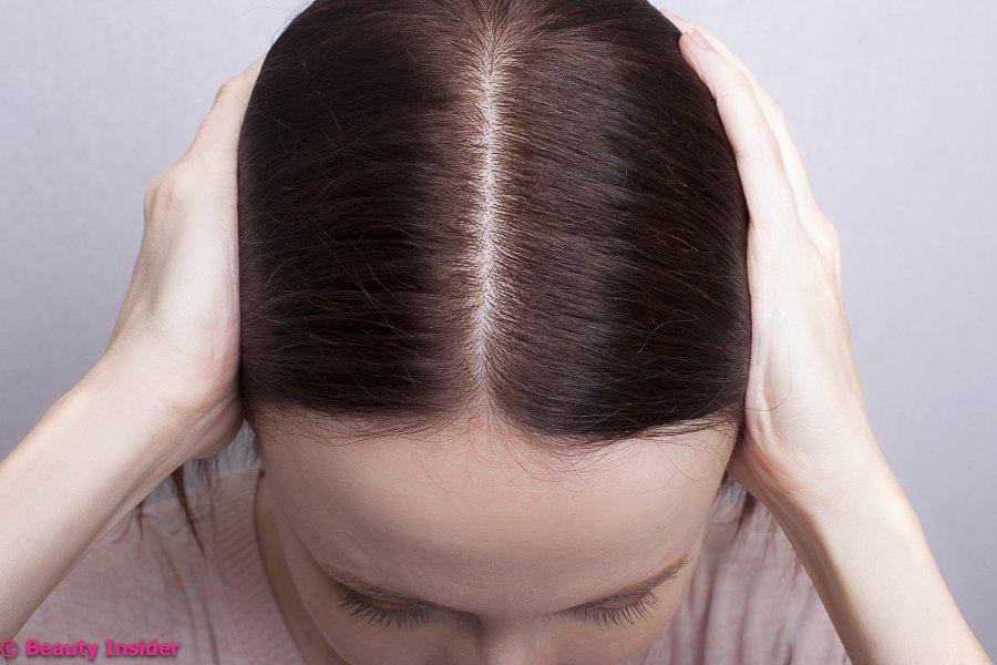 Выпадение волос у женщин – причины, диагностика, способы лечения