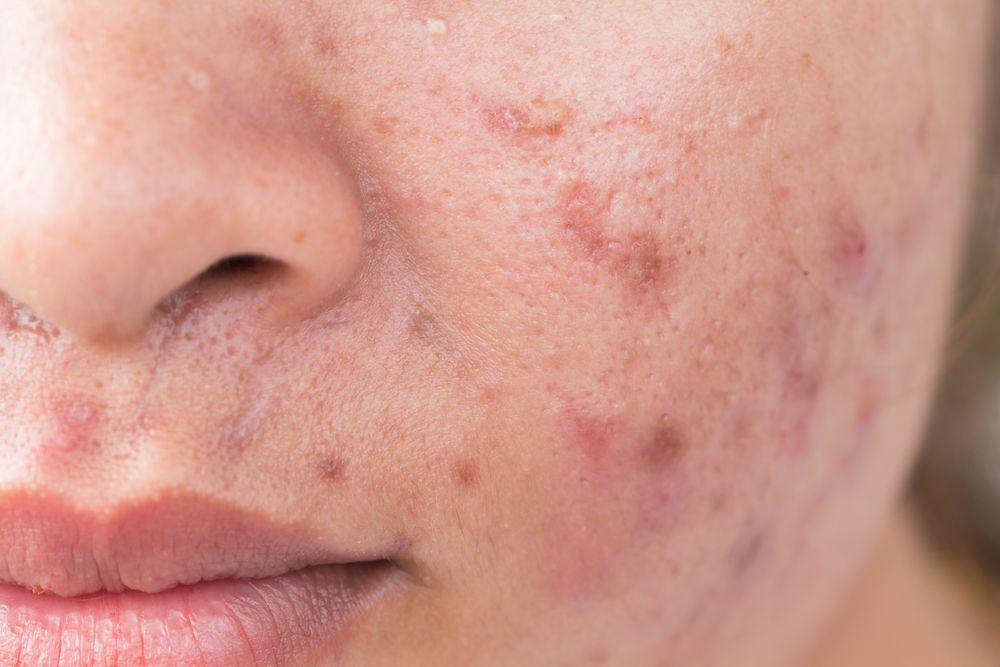 В чем причины возникновения пиодермии у детей на коже?