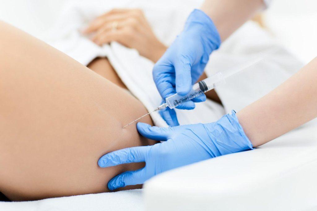 В чем заключается и как проводится мезотерапия липолитиками