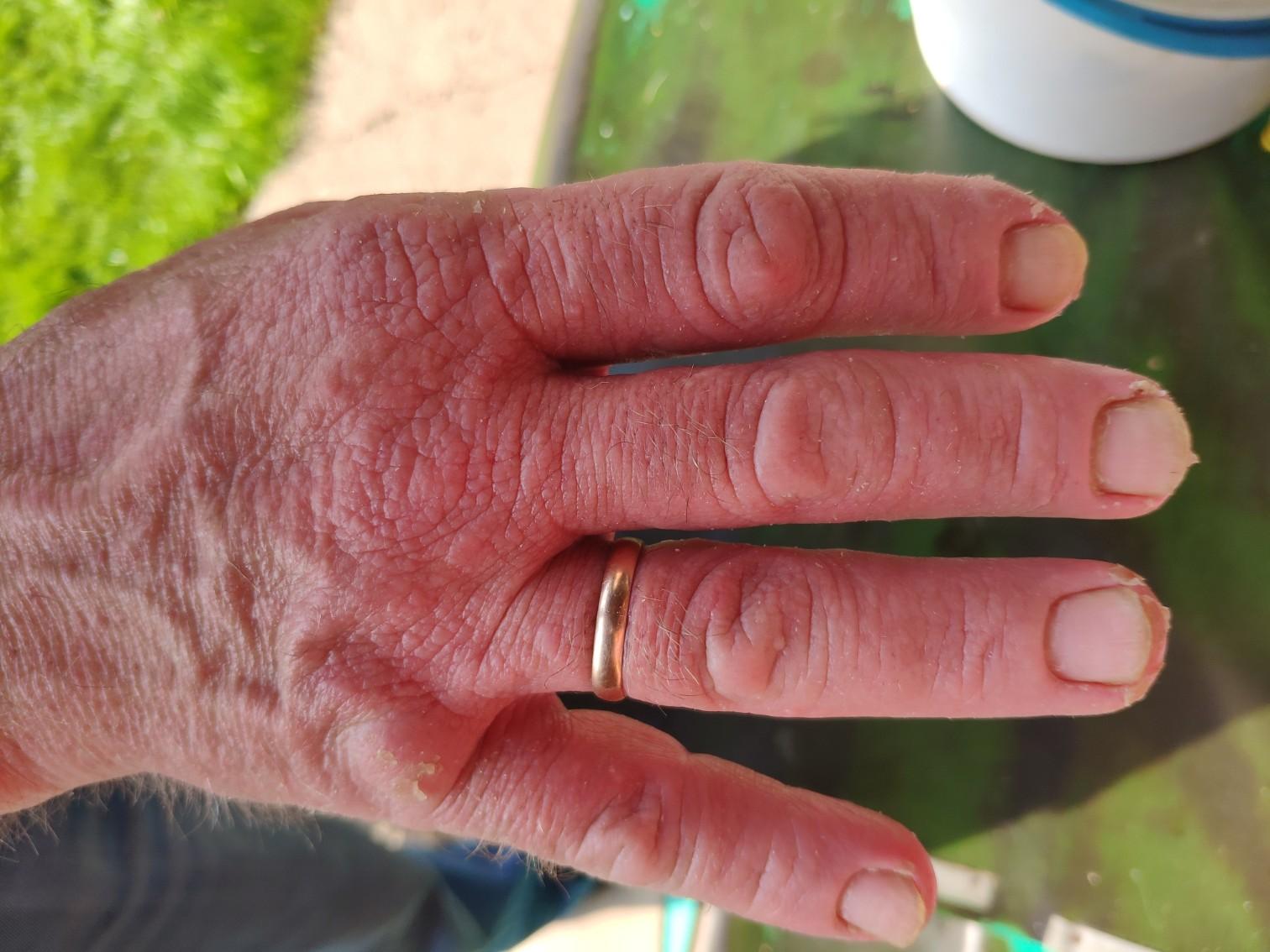 Трескается кожа причины. методы лечения трещин и шелушения на руках. когда нужно обратиться к врачу
