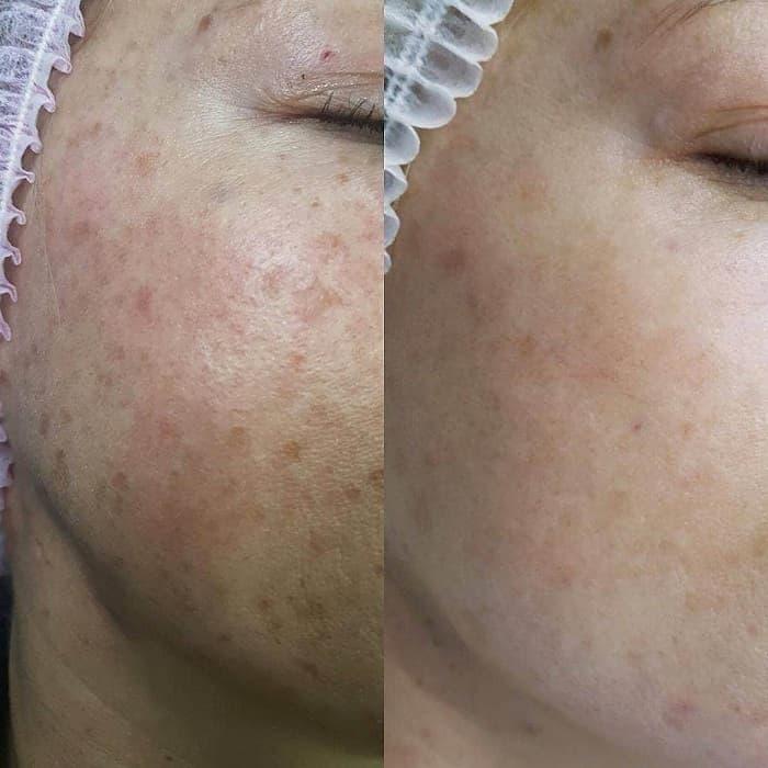Пигментные пятна на лице: причины появления