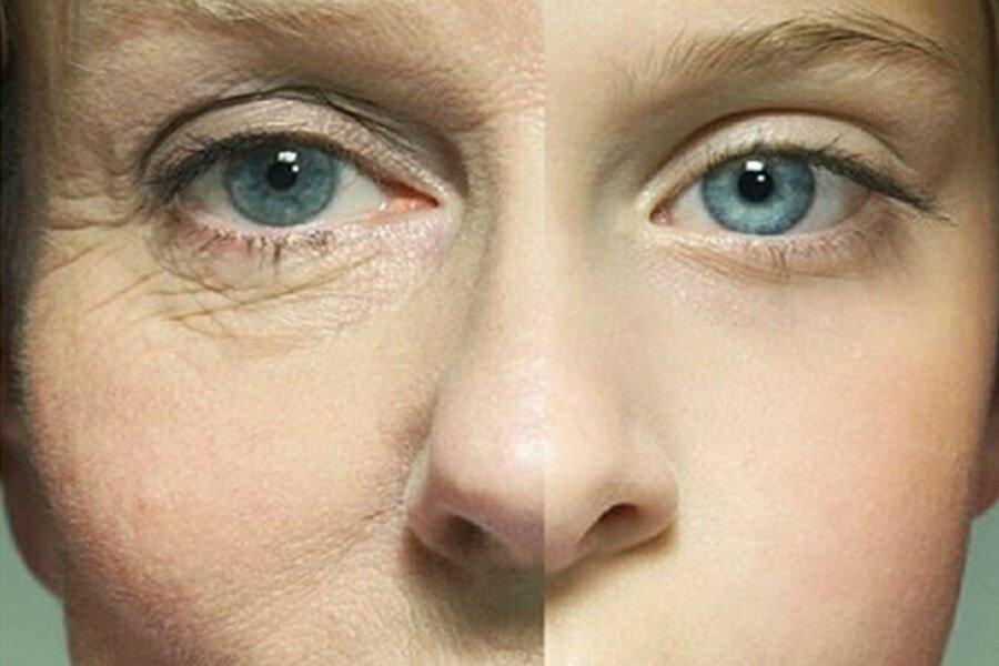 Убираем морщины вокруг глаз: лучшие рецепты