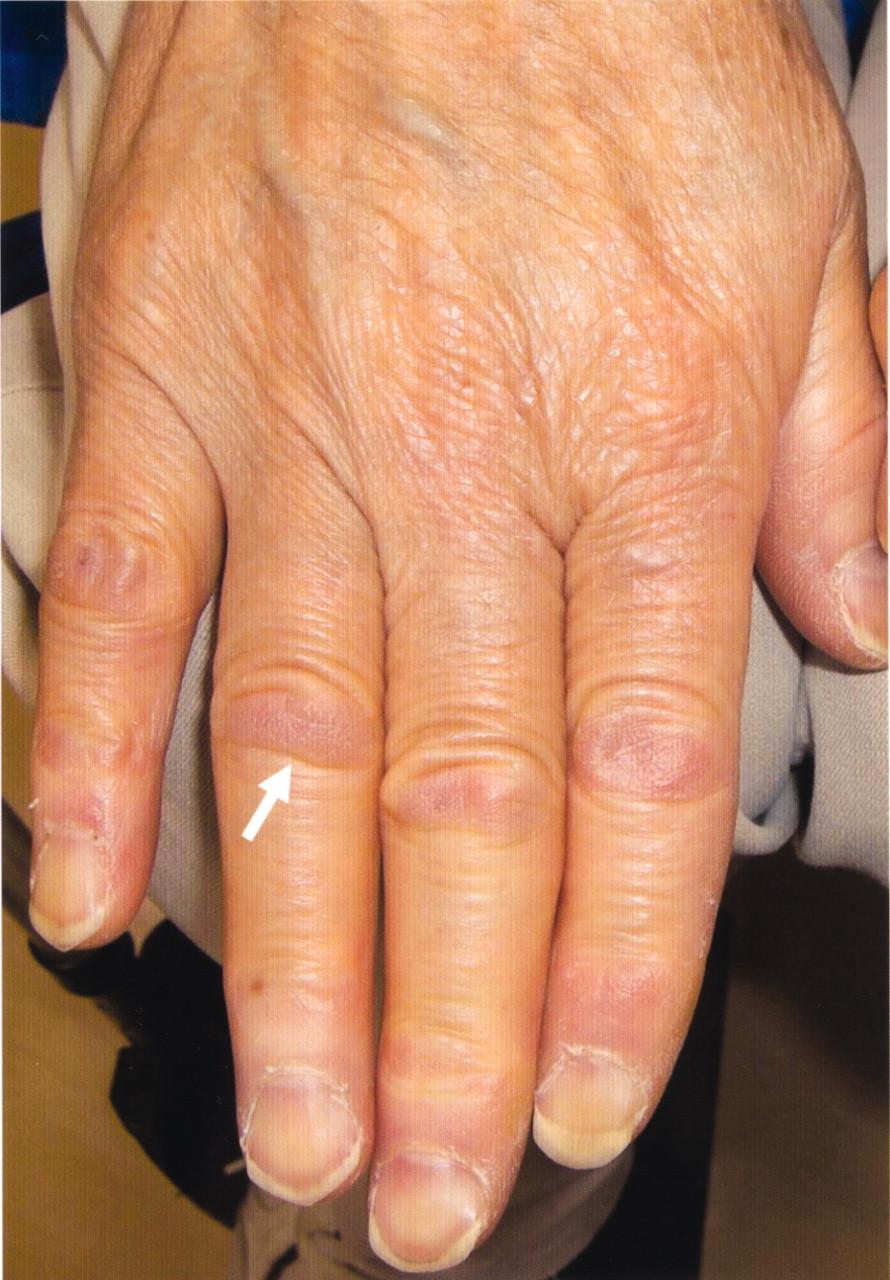 Амилоидоз кожи