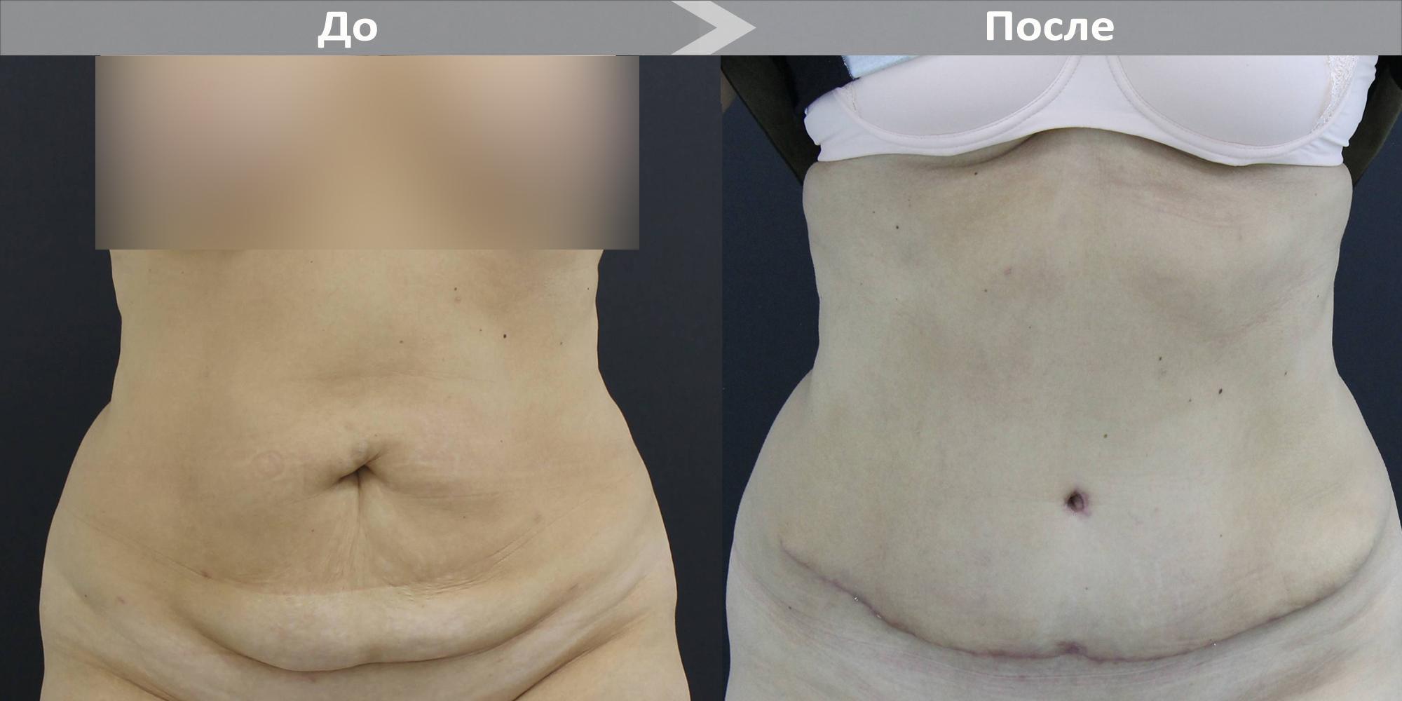 Абдоминопластика (пластика, коррекция живота)  бесплатно в москве и спб: фото до и после, отзывы о пластической операции, реабилитация