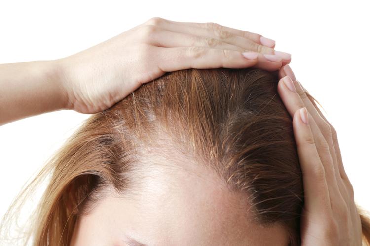 Почему выпадают волосы у детей 5-6 лет?