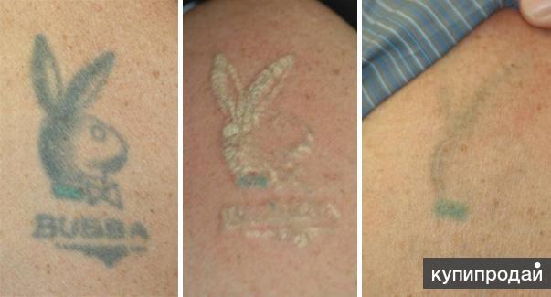 Как быстро вывести татуировку в домашних условиях