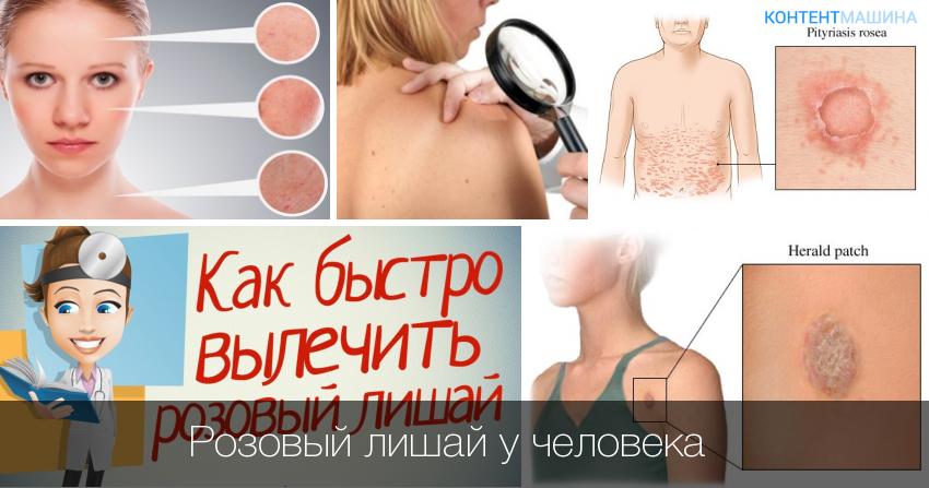 Лишай у человека. симптомы, признаки и лечение. как выглядит лишай. фото, виды, стадии с названиями