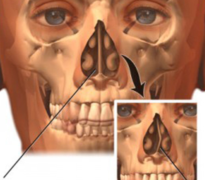Причины и лечение искривления носовой перегородки операцией и без