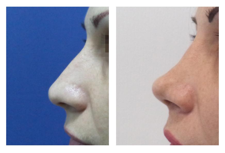 Ринопластика носа безоперационная, закрытая, открытая, реконструктивная, инъекционная, реабилитация