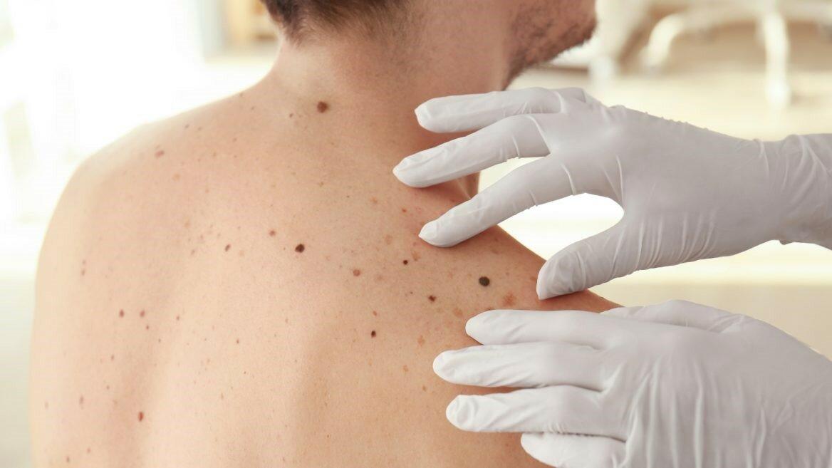 Кератомы кожи: виды, симптомы, методы лечения и удаления + фото и отзывы