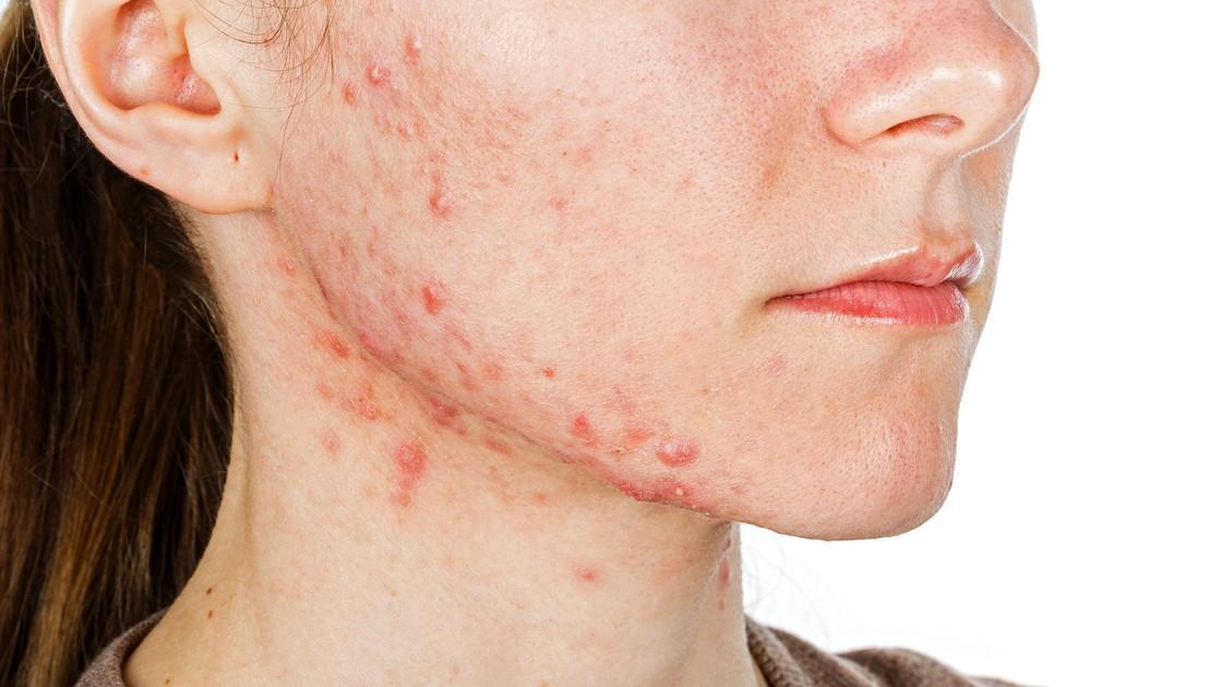 Старческие бородавки, себорейный кератоз (кератома): причины, лечение