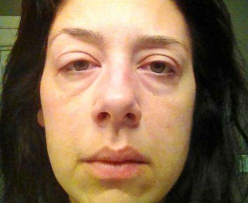Почему опухает лицо по утрам. как избавиться от отечности лица