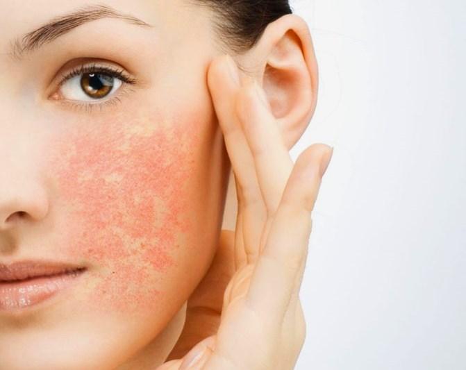 Причины и лечение себорейного дерматита на лице