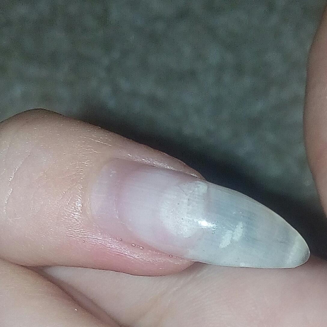 Темное пятно под ногтем. внутренние причины