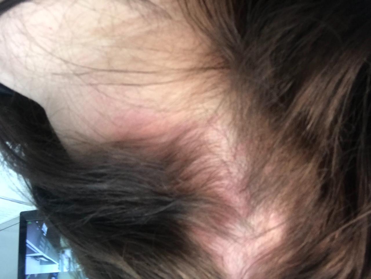 Если у вас чешется голова и выпадают волосы: разбираемся в причинах, изучаем методы лечения