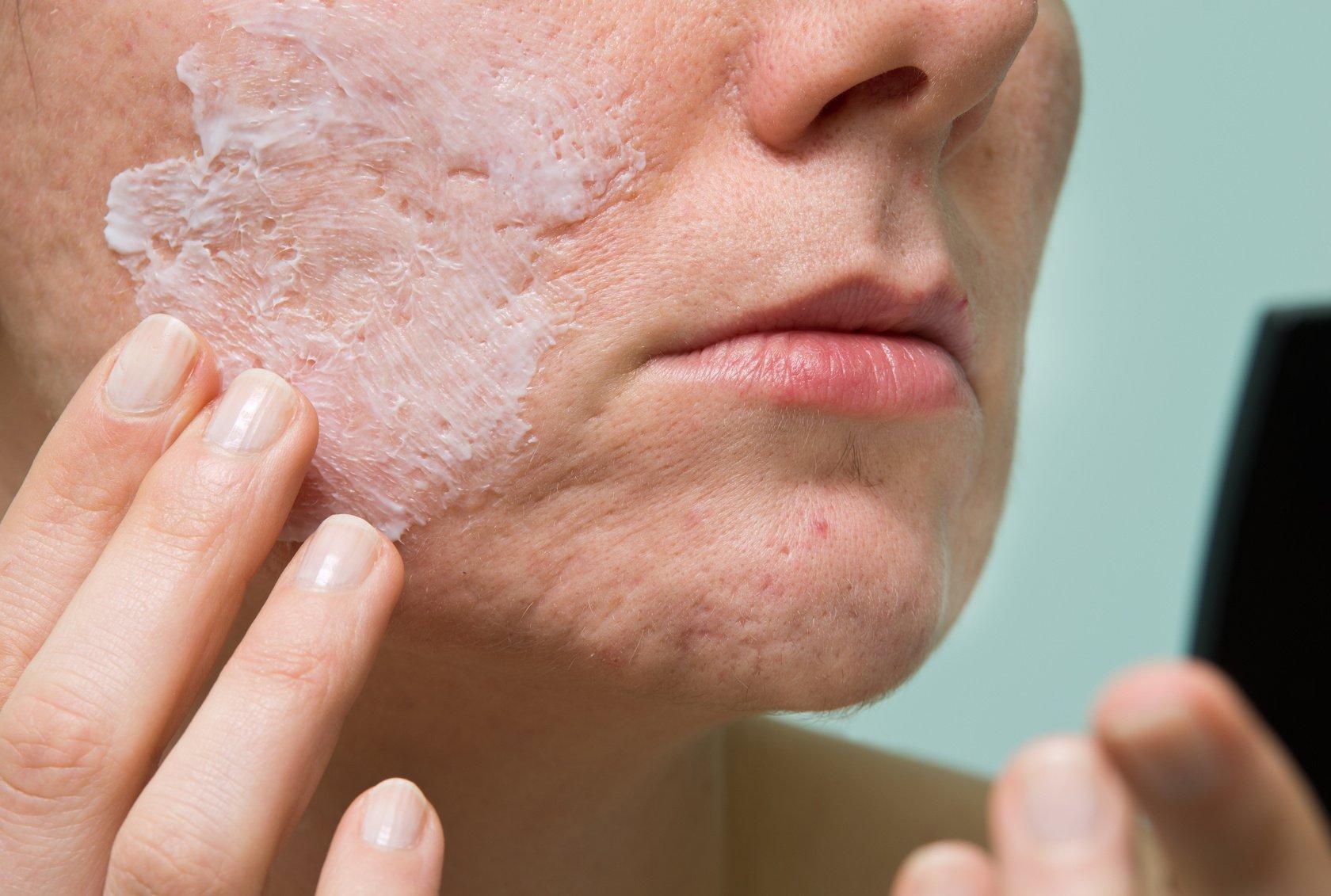 Что делать, если чешется лицо: возможные причины и методы терапии