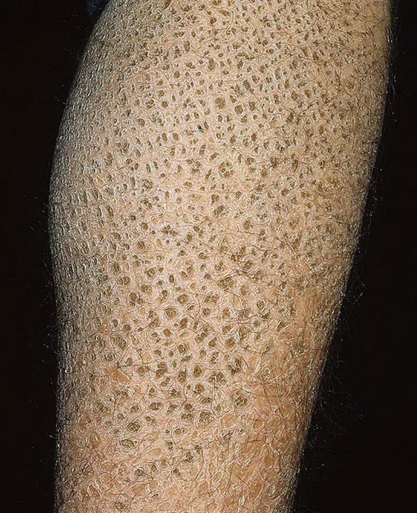 О гиперкератозе кожи лица: что делать с ороговевшей и шелушащейся кожей