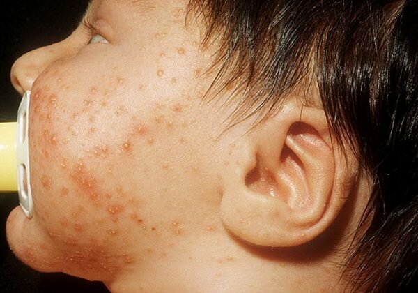Пиодермия у взрослых — лечение, причины, симптомы