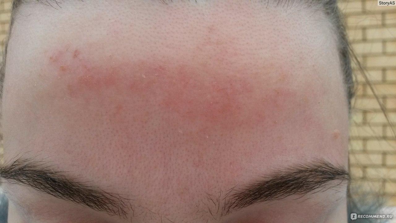 Дерматит на лице фото и симптомы