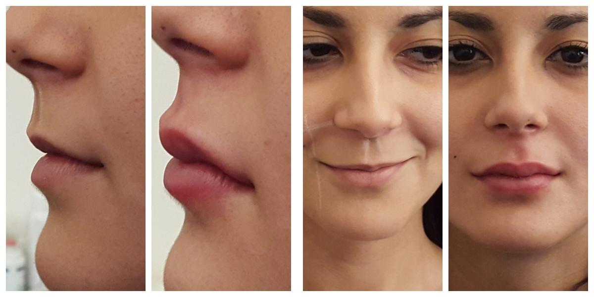Увеличение губ перманентным макияжем – это миф или реальность.