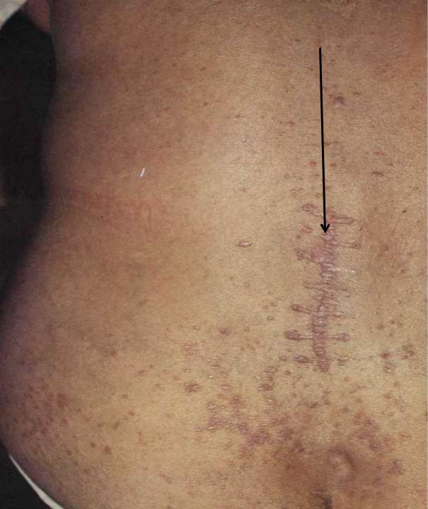 Красный плоский лишай: фото, лечение, симптомы и причины