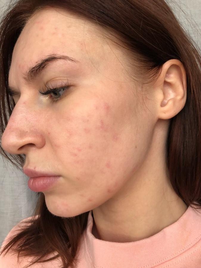 Лазерная шлифовка лица: что это такое, плюсы, минусы, результаты до и после