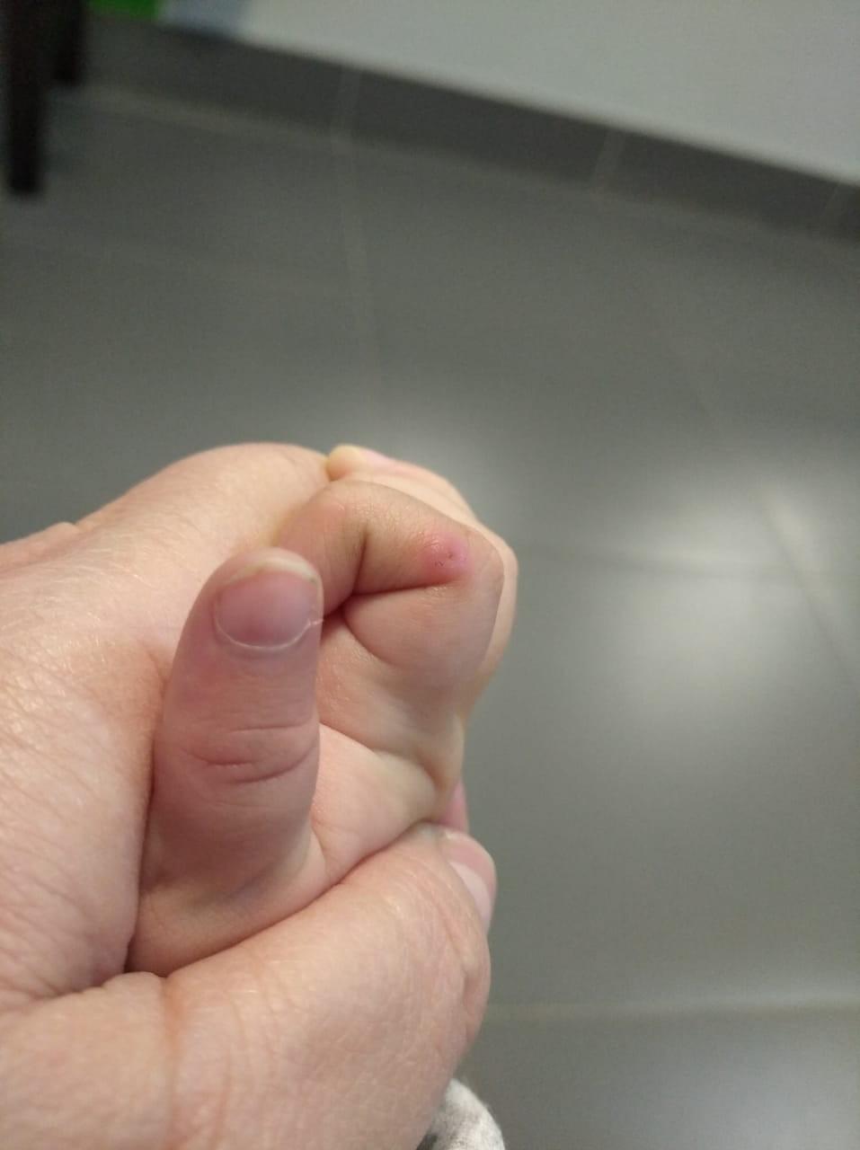 Панариций на пальце— симптомы, причины, лечение
