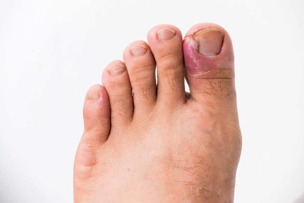 Панариций. причины, симптомы, лечение заболевания. панариций подногтевой, пальцев рук и ног. :: polismed.com