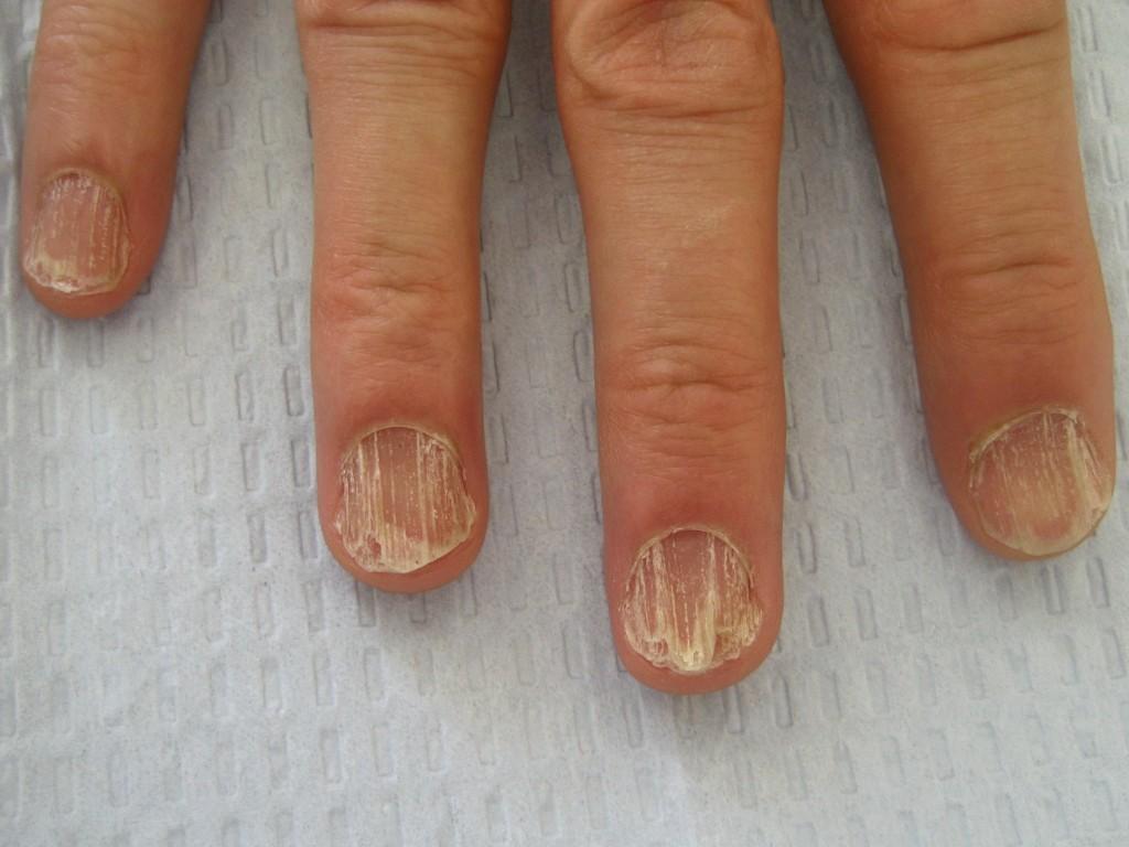 Проблемные ногти и причины