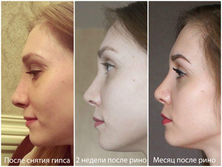 Прямой нос фото. нос кейт миддлтон и еще 9 самых популярных форм носа для ринопластики