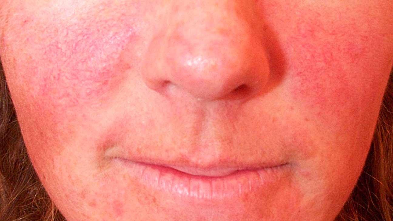 Гиперемия кожи: что это такое, лица и кожных покровов
