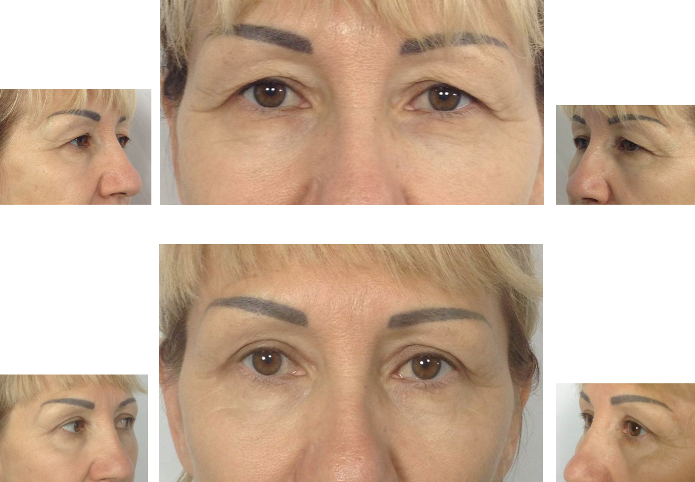 Блефаропластика нижних век: как делают пластику под глазами, фото до и после