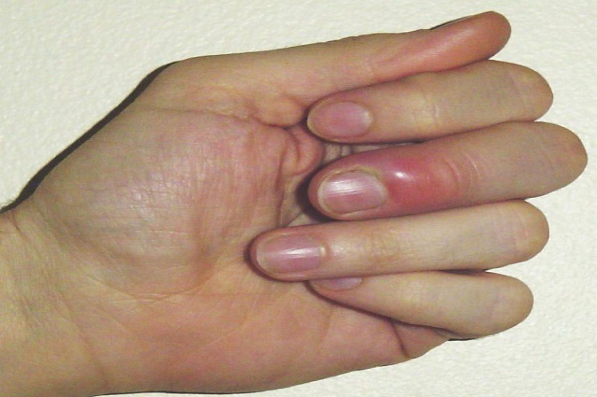 Панариций на пальце лечение в домашних условиях