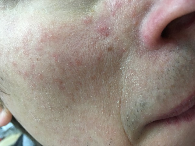 Раздражение на коже лица: причины и лечение