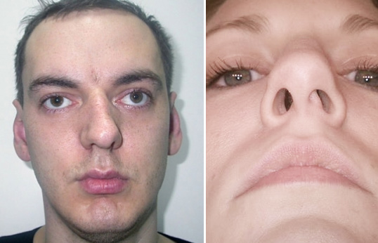 Септопластика и ринопластика: исправление искривления носовой перегородки