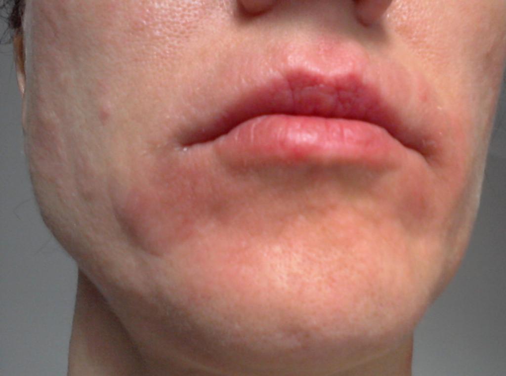 Как можно убрать раздражение, покраснение и шелушение на лице
