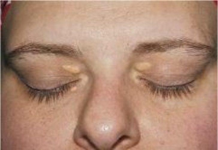 Причины появления жировиков на лице. почему возникает жировик и как лечить