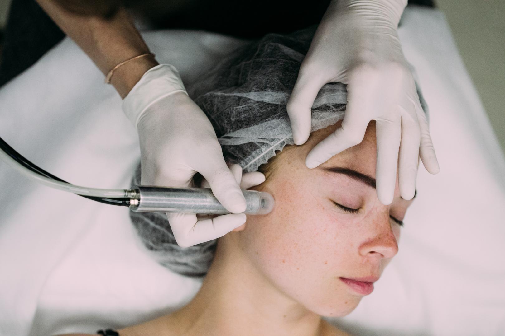 Что такое дермабразия лица и как её делают?