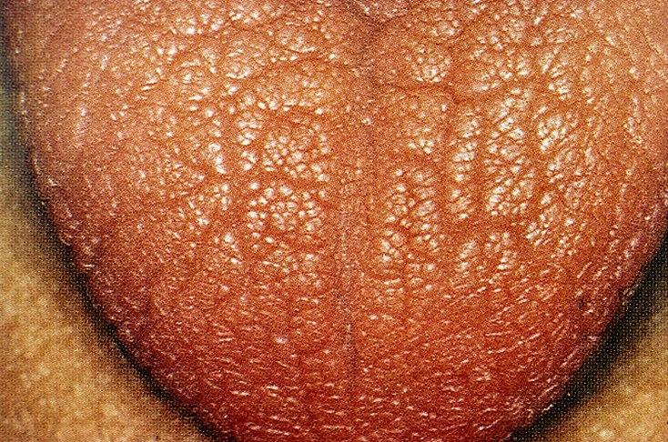 Амилоидоз почек