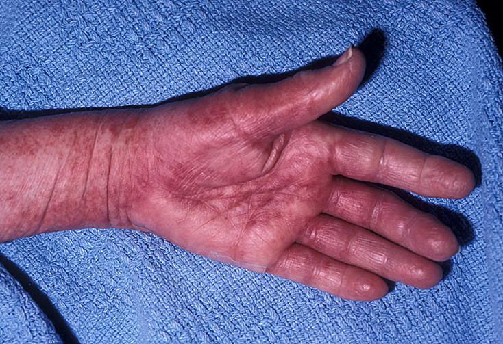 Хроническое миелопролиферативное заболевание (хмпз): что это, виды, проявления, диагностика, терапия