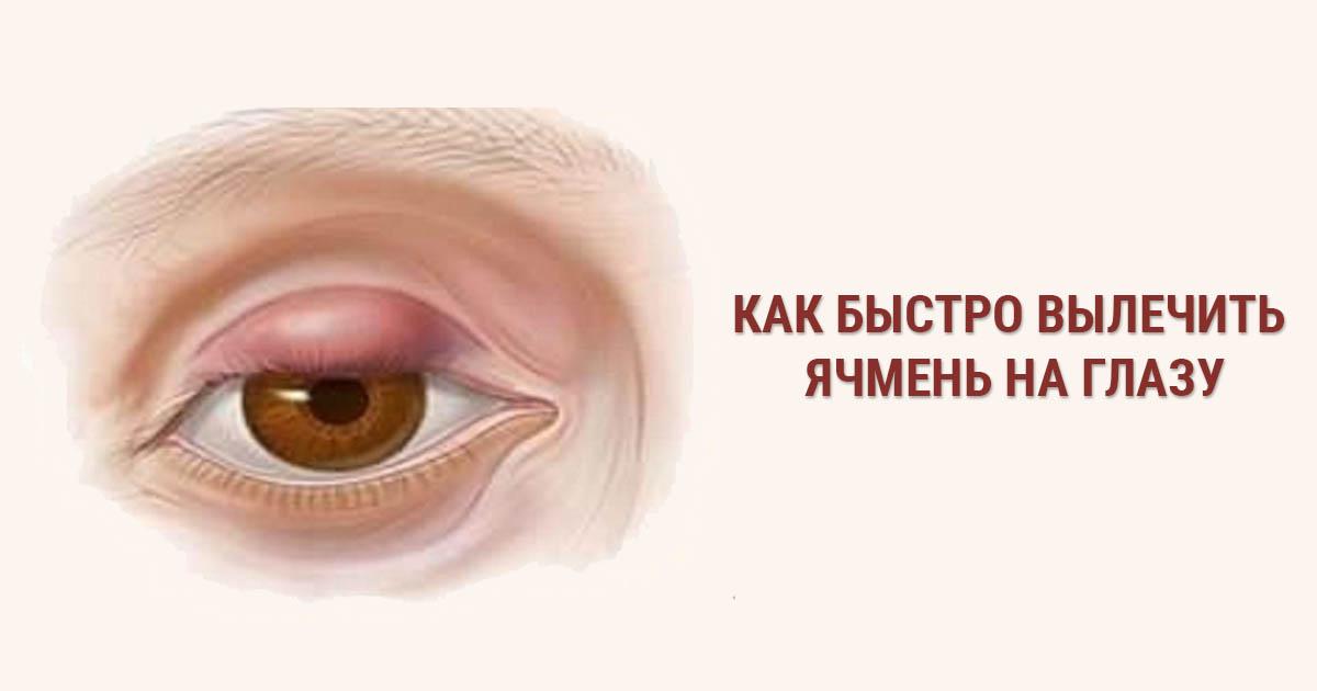 Лечение ячменя на глазу народными средствами