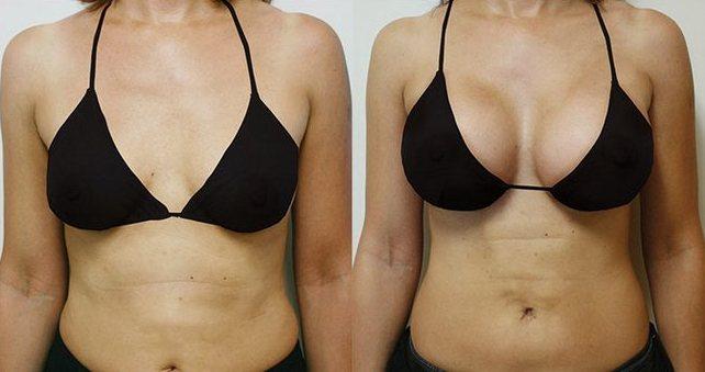 Третий размер бюста. как выглядит без имплантов, лифа до и после операции. сколько в объеме, какой размер, буква