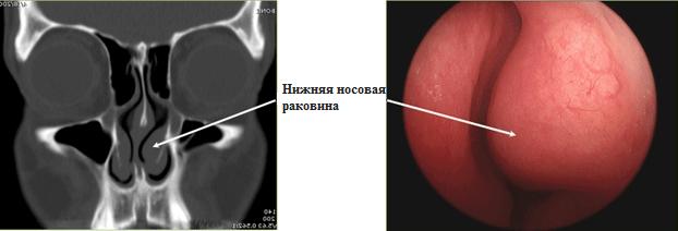 Вазотомия нижних носовых раковин