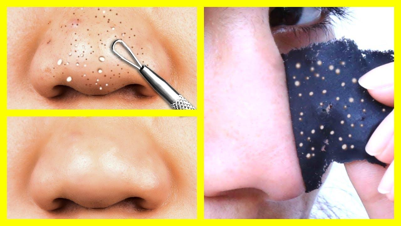 Причины появления черных точек на лице