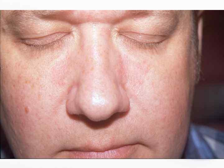 Как лечить атерому на мочке уха