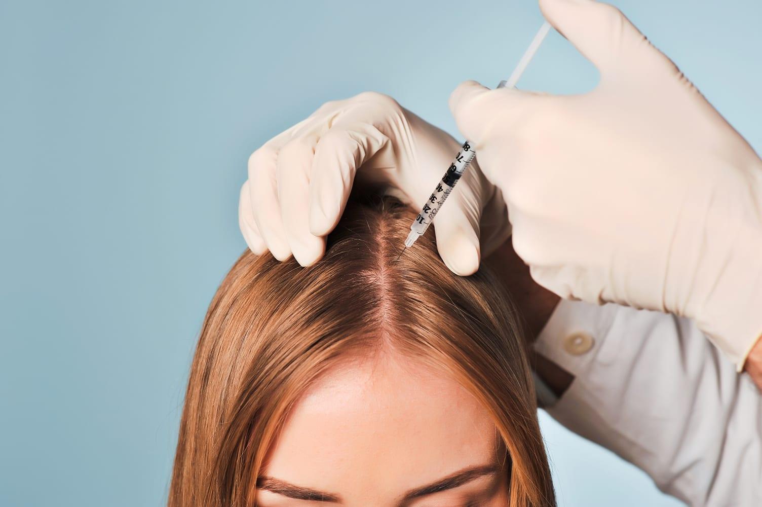 Показания мезотерапии кожи головы: принцип действия и эффективность процедуры