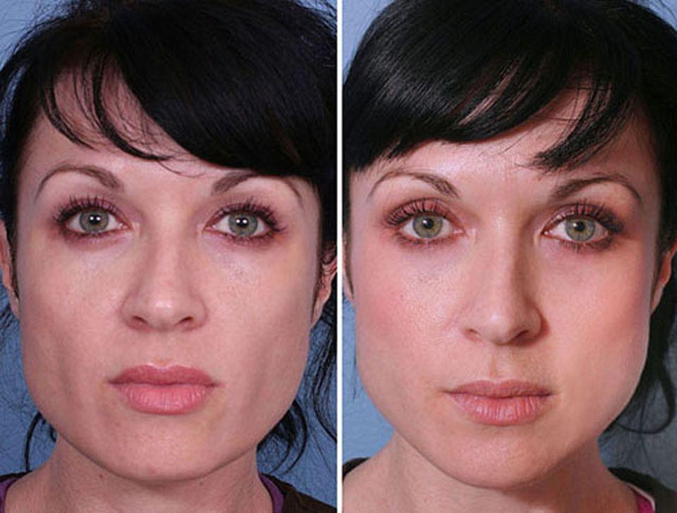 Инъекционная контурная пластика лица. что это такое. фото до и после, препараты, цена