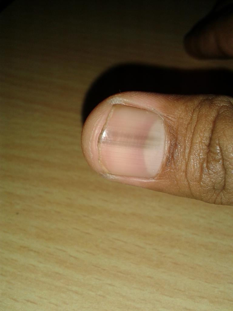 11 причин появления черных полос на ногтях