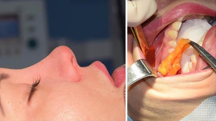 Удаление комков биша. фото до и после, последствия, реабилитационный период. как убрать без операции
