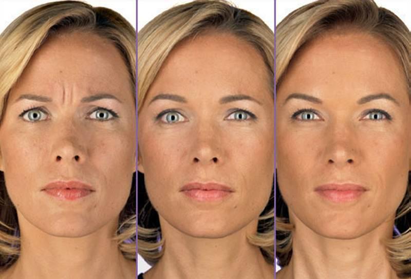 Ботокс для лица — полезные свойства и возможный вред